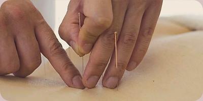 overall-acupunctuur